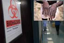 Texas monkeypox case: Dallas man ...