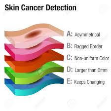 An Image Of A Skin Cancer Detection Chart