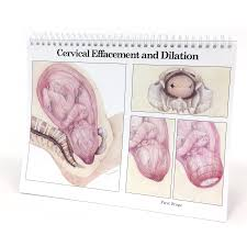 Effacement And Dilation Of The Cervix Chart Childbearing Classic Series Desk Version Childbirth Graphics