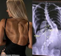 Scoliosis Degrees Of Curvature Chart Instagram Star 25 Declines Surgery To Fix The 80 Degree