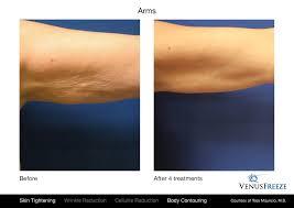skin tightening arms