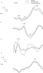 Figure 2 raw data from a representational control participant indicating somatosensory evoked potential sep