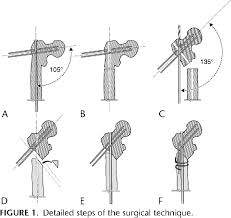Coxa Vara Figure 1 From Results And Complications Of A Surgical