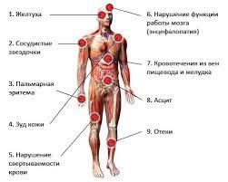 Боль в печени при печени болит спина При печени болит спина