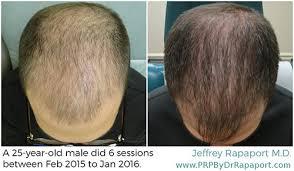 hair restoration before after 1 jpg