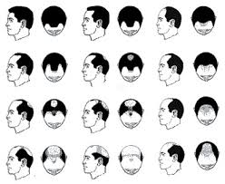 Best haircuts for men additionally Confronting Your Crown  Male Pattern Baldness   New H shire in addition 50 Stylish Hairstyles for Balding Men   MenHairstylist as well Side Bald Hairstyle for Men   Latest Men Haircuts likewise The Ultimate Guide to Going Bald Gracefully   The Idle Man moreover Hairstyles for a Receding Hairline   The Idle Man additionally Balding Hairstyles  How To Wear It When You're Losing It further 50 Classy Haircuts and Hairstyles for Balding Men together with  further 50 Classy Haircuts and Hairstyles for Balding Men additionally Male Pattern Baldness Causes   Treatments   Hair Club. on best haircut for male pattern baldness