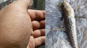 Türkiye sahillerinde zehirli balık alarmı