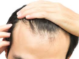 Male Pattern Baldness Causes Custom Male Pattern Baldness Causes And Treatment