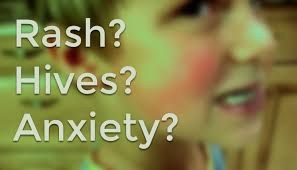 can anxiety cause hives rashes or