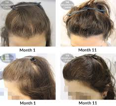 new female hair loss treatment entry