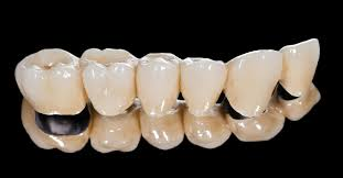 What is a Dental Bridge? Types, Costs, Pros \u0026 Cons.