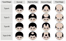 Male Pattern Baldness Causes Stunning Hair Loss What Causes Male Or Female Pattern Baldness Hair Momentum