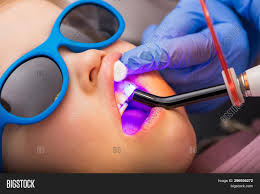 Uv Light Tooth Filling Dentist Performing Image Photo Free Trial Bigstock