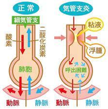 気管支 炎 症状