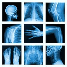Image result for image of bone x ray