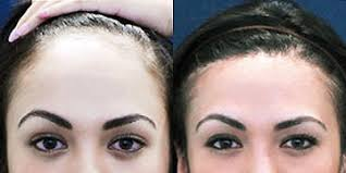 forehead reduction forum munity