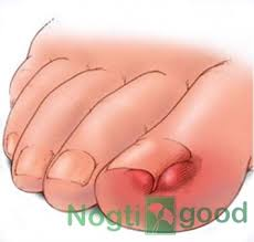 Грибковые заболевания кожи реферат Удаление грибка на ногтях Грибковые заболевания кожи реферат фото 91