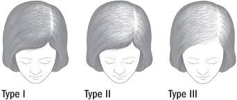 Female Pattern Hair Loss Adorable Treating Female Pattern Hair Loss Harvard Health