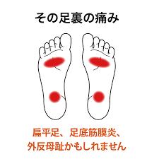 立ち っ ぱなし 足 の 裏 痛い