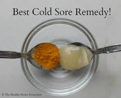 best remedy for cold sores