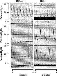 Chart Records Portions Of Polygraph Chart Records From Isolated Rat Lung