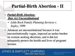 Partial Birth Abortion Plan Partial Birth Abortion Plan Rome Fontanacountryinn Com