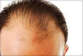 Image result for hair loss definition