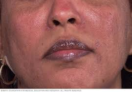 Rosacea - Symptoms and causes - Mayo Clinic