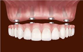 Information for Mini Dental Implant Patients