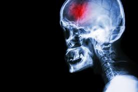 Image result for tissue plasminogen activator (tpa) for stroke