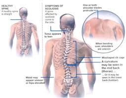 Scoliosis Chart Active Living Chiropractic Scoliosis
