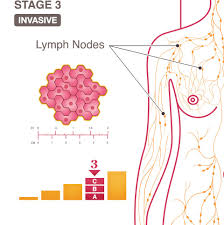 Breast Cancer Growth Rate Chart Stage 3 Iii A B And C National Breast Cancer Foundation
