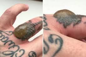 Man Develops Huge Blister After Laser Tattoo Removal