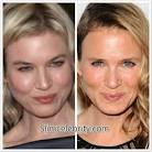 botox before and after 30 year old