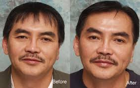 how much does botox cost