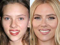 Scarlett Johansson Before and After ...