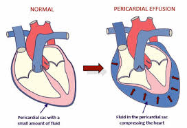 pericardial sac pericardial effusion in dogs davies veterinary specialists