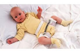 Hip dysplasia in babies | Pregnancy Birth and Baby