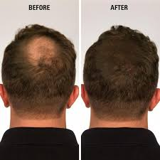 PrevNext  Infinity Hair Fibers