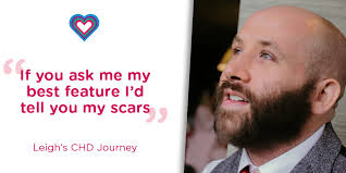 """My scars are a piece of me and I'd be lost without them"""" Leigh ..."""