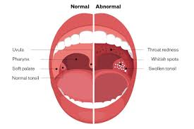 case based learning sore throat the