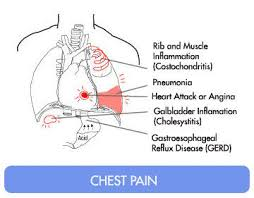 sharp pain in chest. chest pain on my right side it\u0027s sharp n feels like a sting last 4 in v