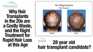 hair transplant how it works why hair transplants dont work in the 20s and treatment to stop