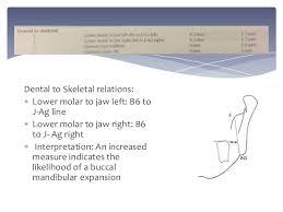 posterio anterior cephalometric analysis mandibular expansion 23