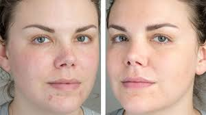 ilration for article led the best way to conceal dark spots and blemishes