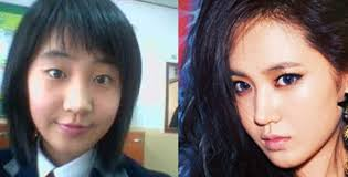 korean eye surgery before and after
