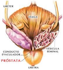 Resultado de imagen para Cáncer de próstata, el enemigo silente del hombre