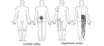 Superimposed Body Chart Pain Drawings N 30 Following