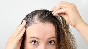 grey hair at 25 here s an ayurveda