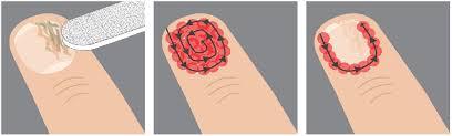 benefits of fungus nail laser treatment